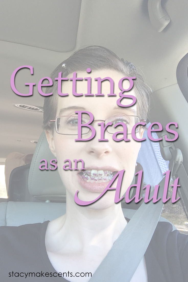 Getting Braces as an Adult - Why I did it and a bit of a confession