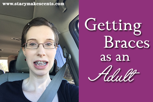 Getting Braces as an Adult {my story}